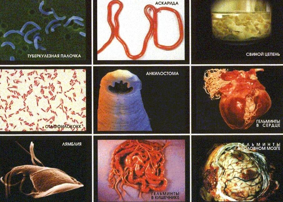 паразиты в организме человека лямблии лечение